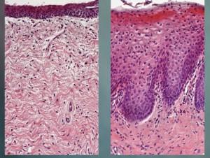 Tejido vaginal antes y después del tratamiento.