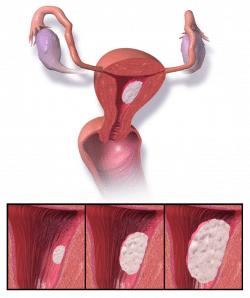 C de endometrio
