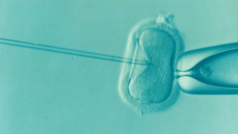 Imagen obtenida de microscopio