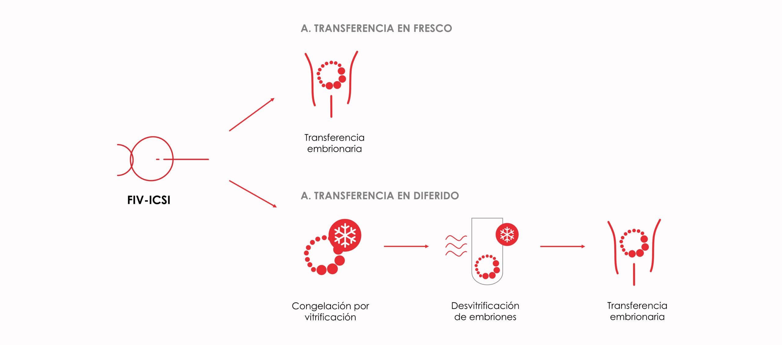 Diferencias entre transferencia en fresco y transferencia en diferido