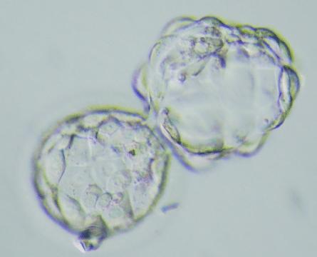 Blastocisto eclosionado