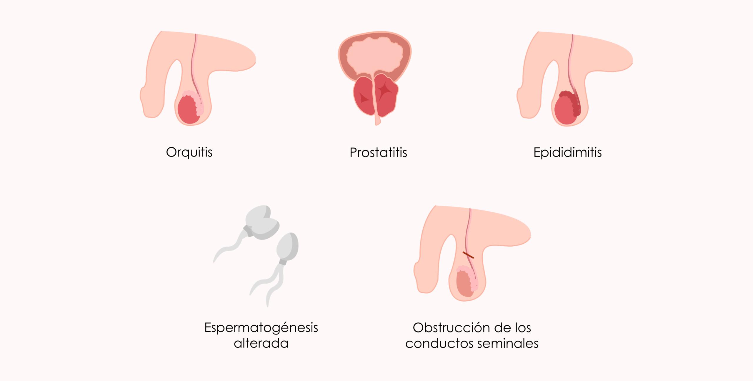 Problemas de infertilidad en hombres con ETS