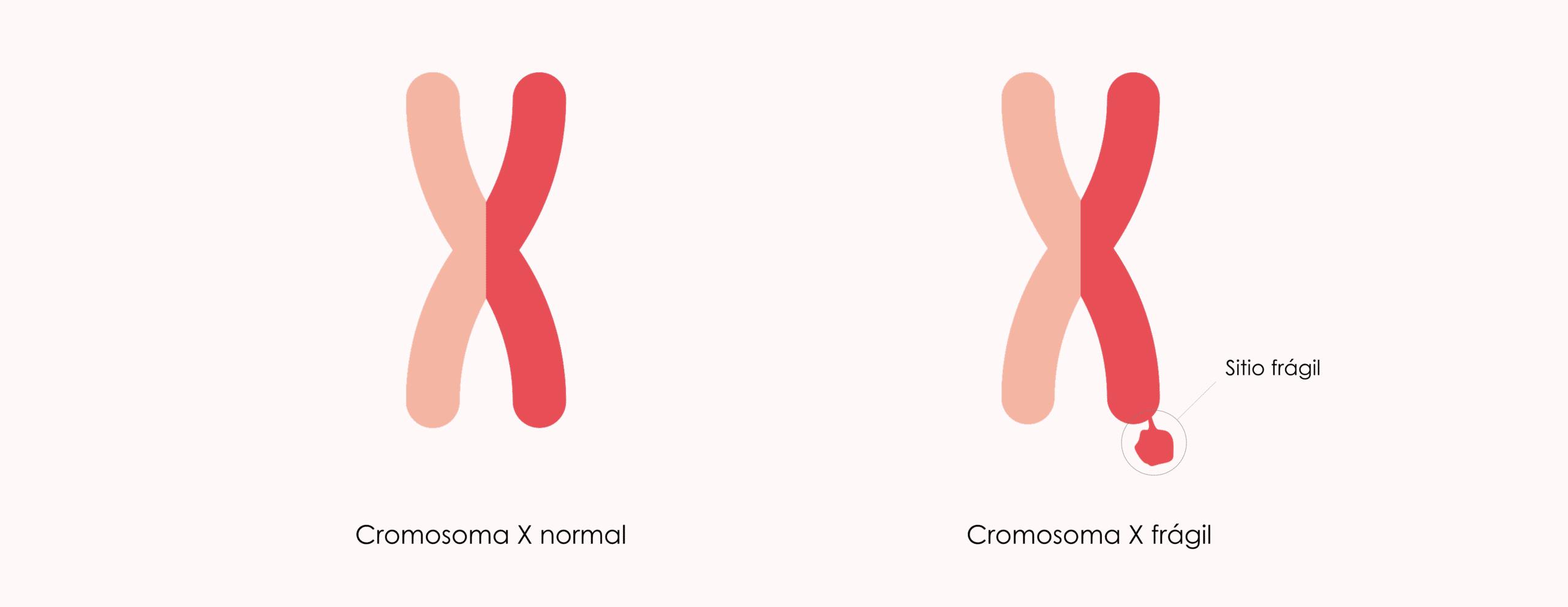Qué es el Síndrome X Frágil