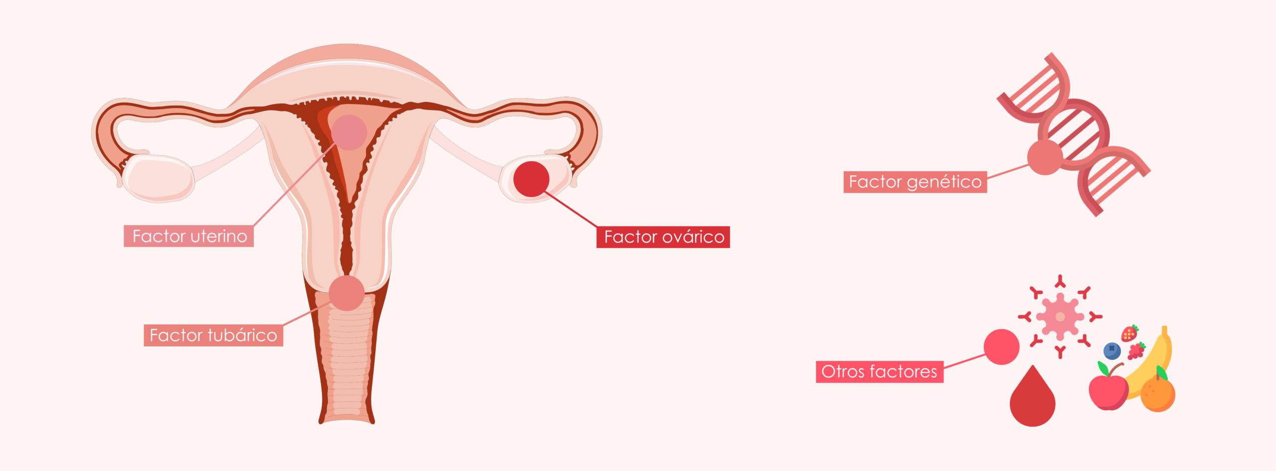 causas de infertilidad femenina